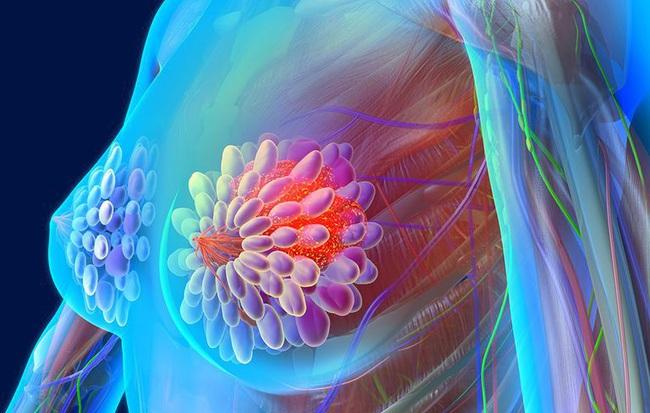 Nhầm tưởng không ít người mắc phải về các căn bệnh ung thư - Ảnh 4.