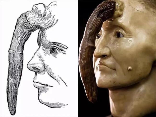 Đến thăm Bảo tàng y học Mutter, một nơi khiến con người vừa tò mò vừa ghê rợn vì những hình ảnh chấn động lịch sử y học thế giới - Ảnh 8.