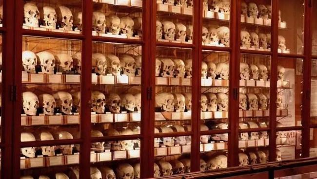 Đến thăm Bảo tàng y học Mutter, một nơi khiến con người vừa tò mò vừa ghê rợn vì những hình ảnh chấn động lịch sử y học thế giới - Ảnh 2.