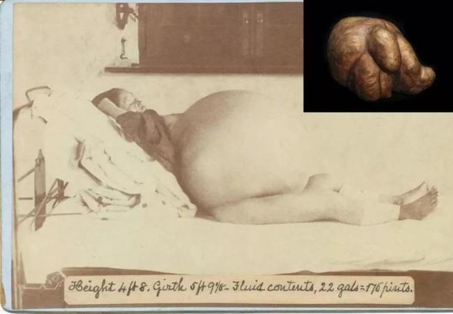 Đến thăm Bảo tàng y học Mutter, một nơi khiến con người vừa tò mò vừa ghê rợn vì những hình ảnh chấn động lịch sử y học thế giới - Ảnh 16.