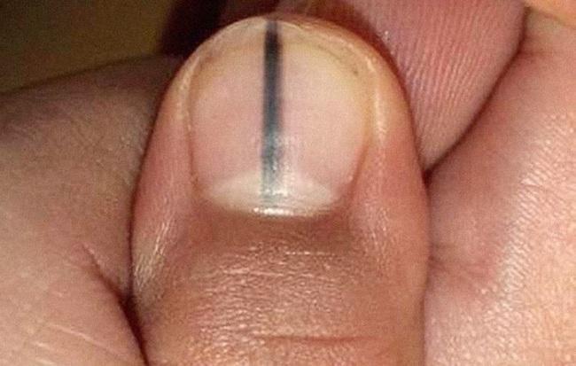 4 tín hiệu bất thường ở tay và chân: 80% bạn đang mắc các bệnh ung thư, cần xem ngay kẻo hối chẳng kịp - Ảnh 3.