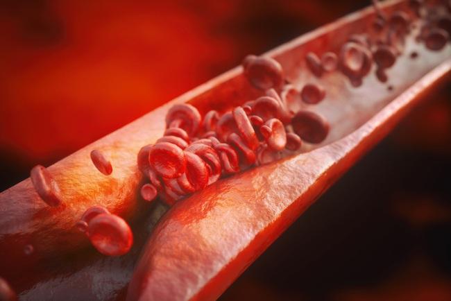 """Hễ có 3 dấu hiệu này trên mặt là bị cục máu đông: Đừng coi thường bởi nó dẫn bạn gặp """"diêm vương"""" nhanh hơn cả ung thư - Ảnh 1."""