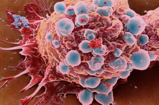 Chuyện hy hữu: Một phụ nữ phát hiện khối u ung thư vú nhờ điều mà ai cũng nghĩ là chỉ có hại này  - Ảnh 4.