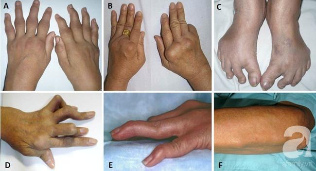 """Tự mua thuốc nam trị đau khớp, 2 năm sau người phụ nữ bị biến dạng bàn tay vì căn bệnh """"tự miễn"""" này - Ảnh 1."""
