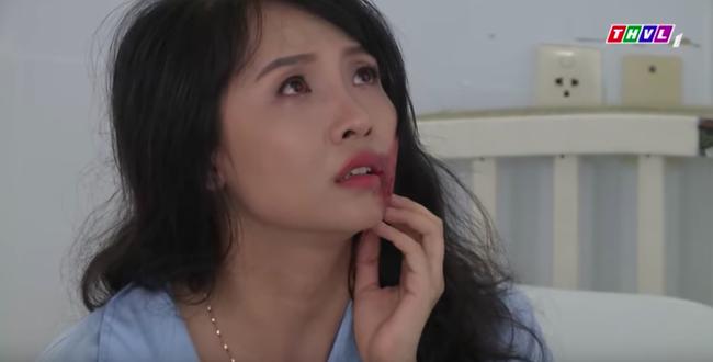 """""""Không lối thoát"""": Nữ y tá ngực khủng bị bỏng hủy hết gương mặt, Minh - Lương Thế Thành giết cả bồ nhí  - Ảnh 5."""