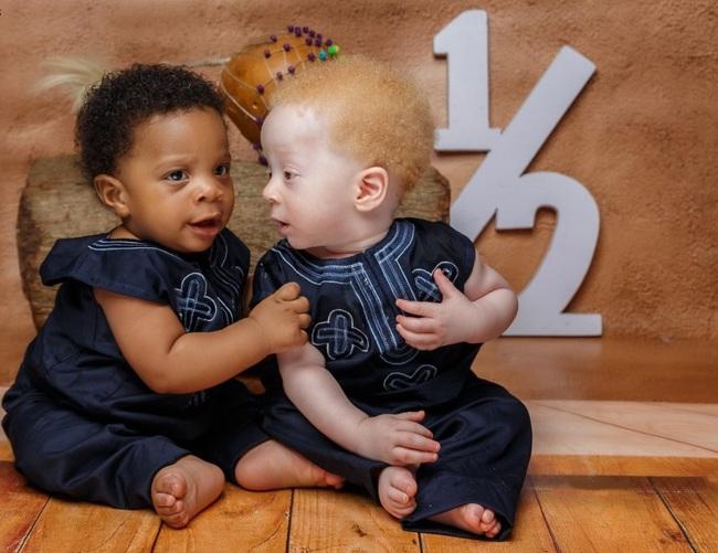Hai bé trai bỗng nổi tiếng nhờ vào ngoại hình đối lập nhau dù là anh em sinh đôi - Ảnh 4.