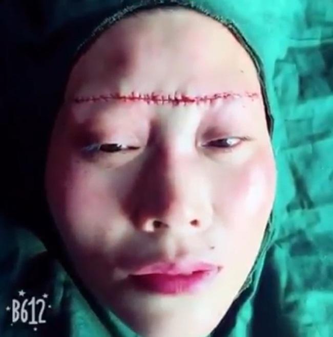 Rùng rợn những hình ảnh nâng chân mày, nâng mũi sởn gai ốc, người phụ nữ sau phẫu thuật đưa ra lời khuyên chân thành đến chị em ham làm đẹp - Ảnh 2.
