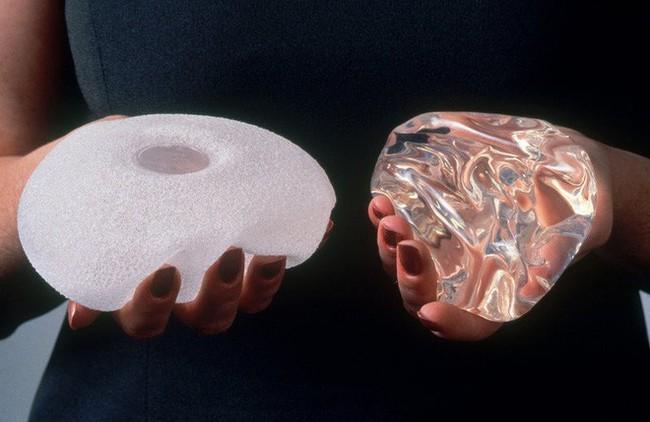 Hàng trăm trường hợp mắc ung thư sau phẫu thuật nâng ngực được phát hiện tại Mỹ - Ảnh 3.