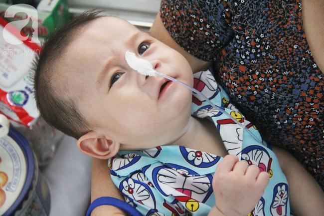Ánh mắt cầu cứu của bé trai 7 tháng tuổi bị mẹ bỏ rơi trước cổng chùa vì mắc bệnh bại não - Ảnh 17.