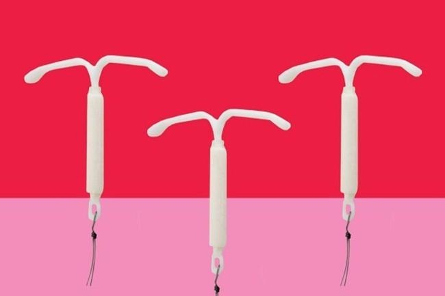 Sự cố vòng tránh thai: Vụ sự cố vòng tránh thai đi lạc trong cơ thể  - Ảnh 2.