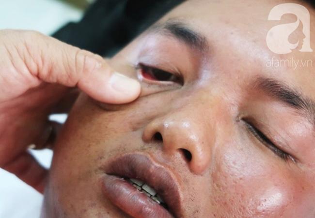 Dịch sởi bùng phát: Tình hình dịch sởi bùng phát cao vì anti vắc-xin - Ảnh 4.