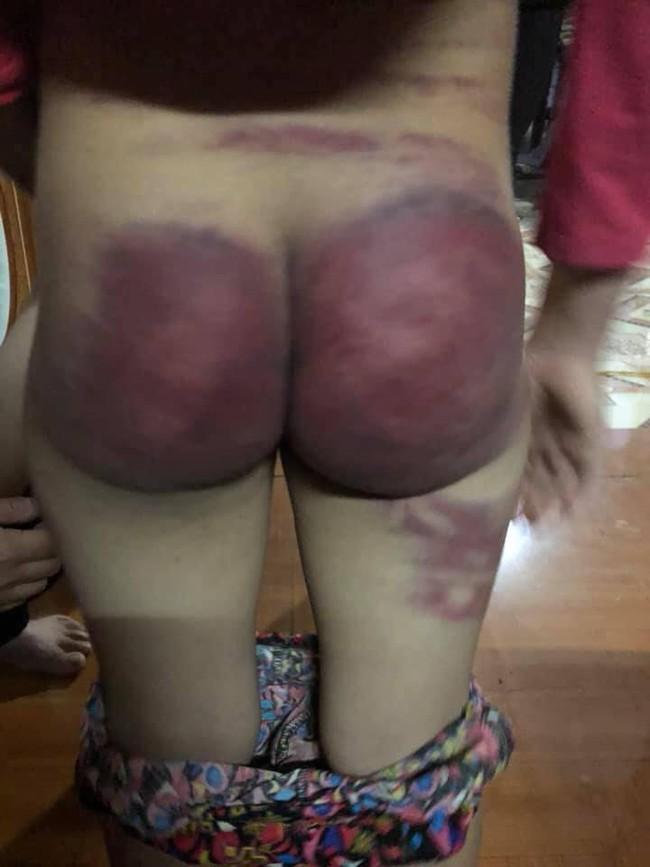 Thanh Hóa: Người cha nghiện ngập bỏ trốn sau khi đánh con gái 8 tuổi bầm tím khắp cơ thể - Ảnh 1.