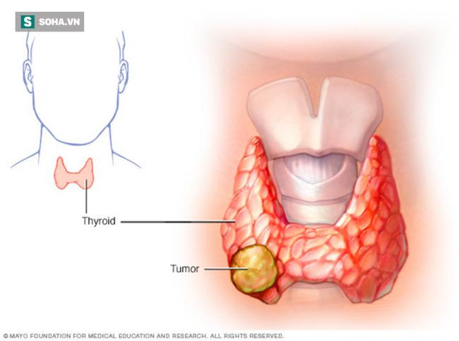 4 người trong nhà cùng mắc ung thư tuyến giáp: PCT Hội Ung thư chỉ dấu hiệu phát hiện sớm - Ảnh 1.
