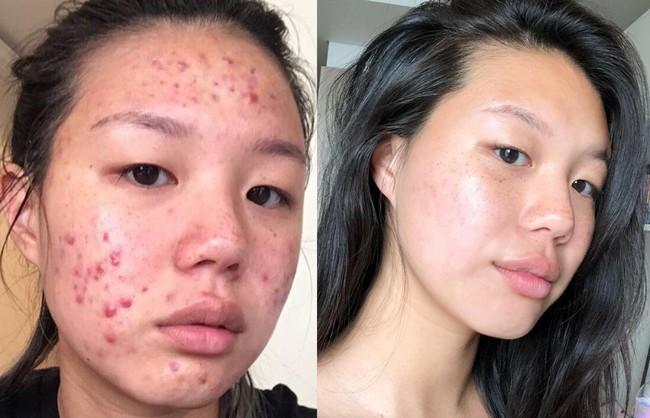 Dù bị mụn hay không, bạn cũng sẽ học được nhiều tips skincare từ cô nàng lột xác làn da đầy tỳ vết thành trơn láng, mịn đẹp này - Ảnh 1.