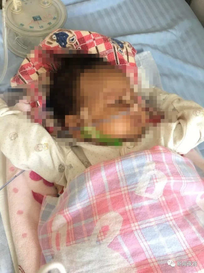 Bé trai 18 tháng tuổi sốt, hôn mê và phải nhập viện cấp cứu sau khi tiêm vắc xin 1 ngày, bác sĩ lên tiếng khuyến cáo - Ảnh 1.