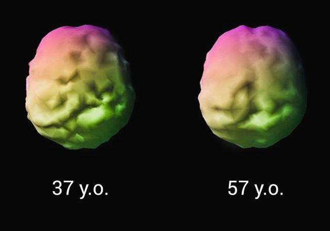 Một nhà thần kinh học đã có cách làm trẻ hóa não bộ của mình và đây chính xác là những gì ông muốn mọi người làm theo - Ảnh 3.