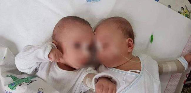 Bức hình cặp song sinh 5 tháng tuổi bị trói chặt trên giường bệnh và sự thật gây sốc khiến ai cũng phẫn nộ - Ảnh 1.