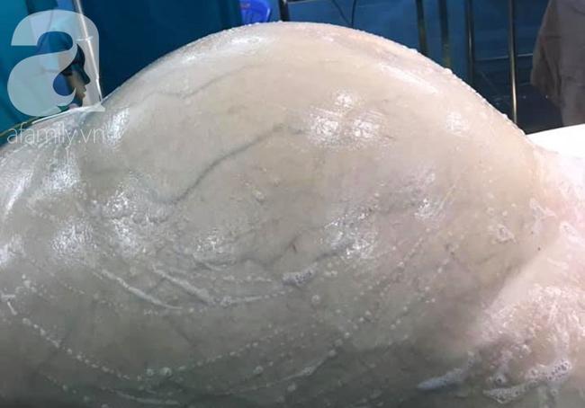Mới 35 tuổi nhưng đã mang u buồng trứng 25kg: Cảnh báo chị em thấy bụng to ra, tiêu tiểu bất thường đừng chủ quan - Ảnh 3.