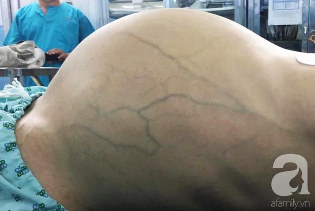 Mới 35 tuổi nhưng đã mang u buồng trứng 25kg: Cảnh báo chị em thấy bụng to ra, tiêu tiểu bất thường đừng chủ quan - Ảnh 1.