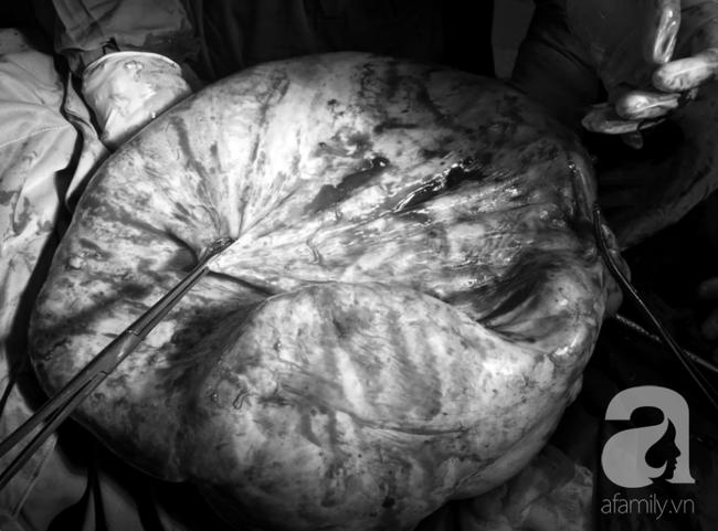Mới 35 tuổi nhưng đã mang u buồng trứng 25kg: Cảnh báo chị em thấy bụng to ra, tiêu tiểu bất thường đừng chủ quan - Ảnh 6.