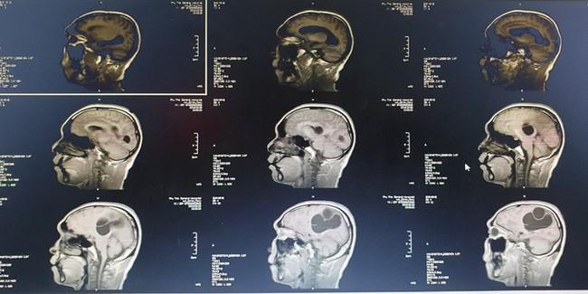 Kinh hoàng một bệnh nhân mắc tổ sán khổng lồ trong não do thói quen ăn những món này - Ảnh 1.