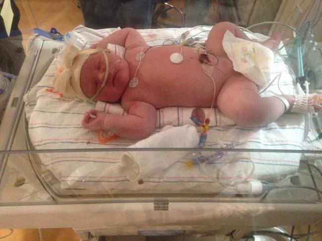 Bé gái sinh ra có cân nặng khủng chưa từng thấy, phá vỡ mọi kỷ lục của bệnh viện dù trước đó người mẹ được cảnh báo rằng sẽ không thể thụ thai - Ảnh 2.
