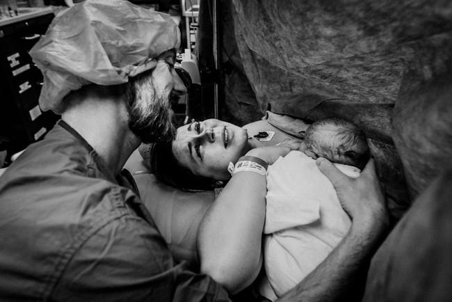 Chùm ảnh xúc động về những ca sinh mổ cho ta thấy các bà mẹ mới là những chiến binh thực thụ trên đời - Ảnh 12.