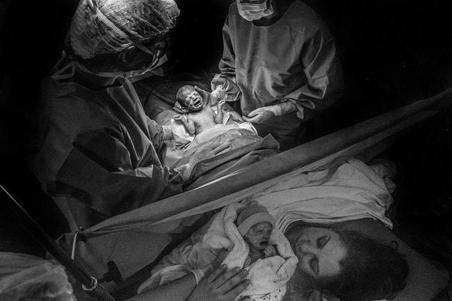 Chùm ảnh xúc động về những ca sinh mổ cho ta thấy các bà mẹ mới là những chiến binh thực thụ trên đời - Ảnh 8.