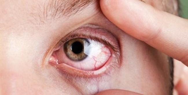 Phân biệt đau mắt đỏ và dị ứng thường gặp vào mùa xuân - Ảnh 3.