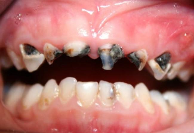 """MXH đua nhau lan truyền """"Không được cho con súc miệng lại với nước khi đánh răng"""": Chuyên gia tiết lộ sự thật - Ảnh 3."""