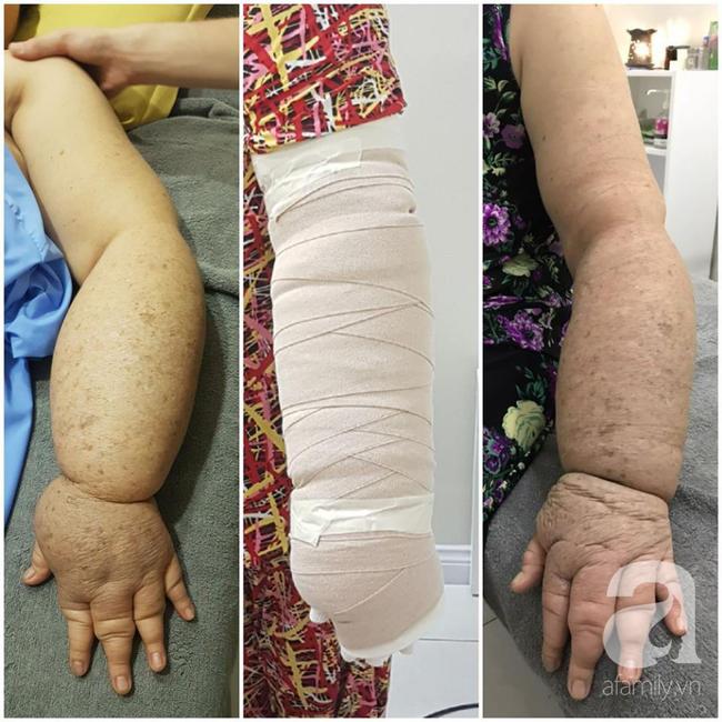 Hạnh phúc ngập tràn của người phụ nữ 15 năm mang cánh tay voi và phải cắt ngực trị ung thư vú - Ảnh 4.
