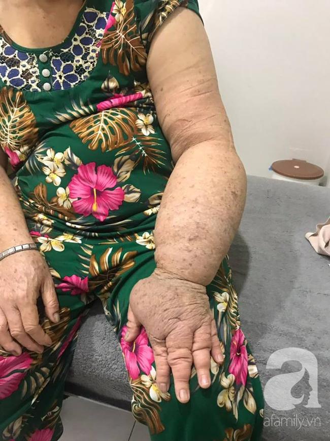 Hạnh phúc ngập tràn của người phụ nữ 15 năm mang cánh tay voi và phải cắt ngực trị ung thư vú - Ảnh 2.