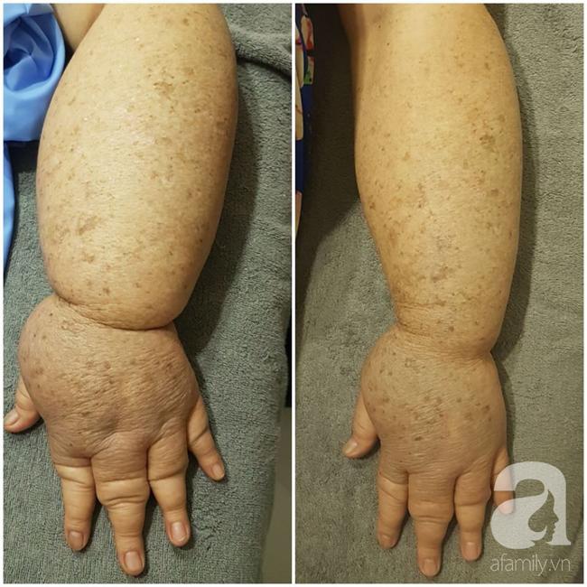 Hạnh phúc ngập tràn của người phụ nữ 15 năm mang cánh tay voi và phải cắt ngực trị ung thư vú - Ảnh 6.