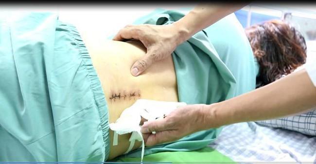 Phẫu thuật giúp người phụ nữ đi lại bình thường sau khi bị liệt vì thoát vị đĩa đệm - Ảnh 1.