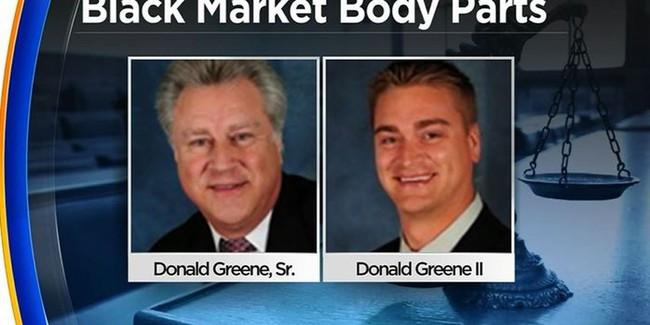 Hai cha con buôn bán bộ phận cơ thể người nhiễm HIV, viêm gan với lí do phục vụ cho khoa học gây chấn động nước Mĩ - Ảnh 1.