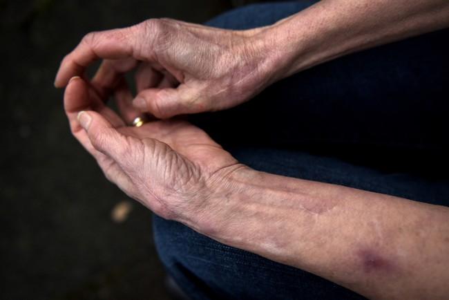 Tìm ra nguyên nhân cụ bà 71 tuổi không hề biết đến cảm giác đau đớn - niềm hi vọng của các nhà khoa học - Ảnh 2.