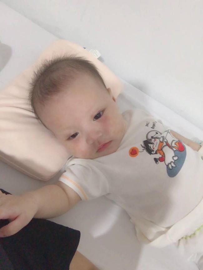 Con đột nhiên bị sởi, rồi di chứng sang phổi, người mẹ Hà Nội đau đớn nhận ra có thể tất cả mọi chuyện bắt nguồn từ... một nụ hôn - Ảnh 5.