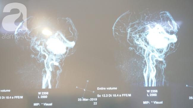 15 giờ phẫu thuật ngoạn mục cứu nữ bệnh nhân mang khối u não khổng lồ, nhiều bệnh viện đã chê - Ảnh 1.