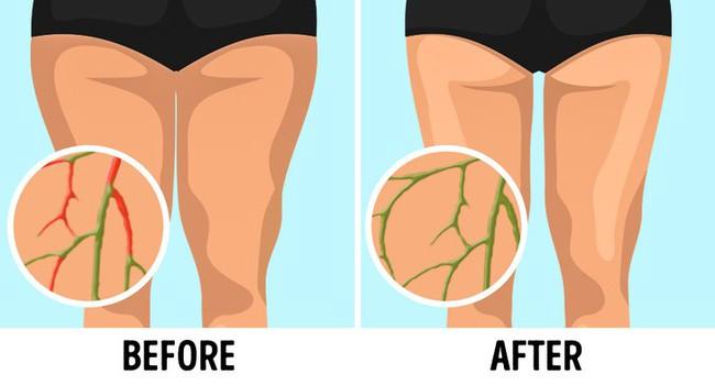 6 bài tập đơn giản có tác dụng lưu thông hệ bạch huyết, giúp giảm cân không cần ăn kiêng - Ảnh 1.