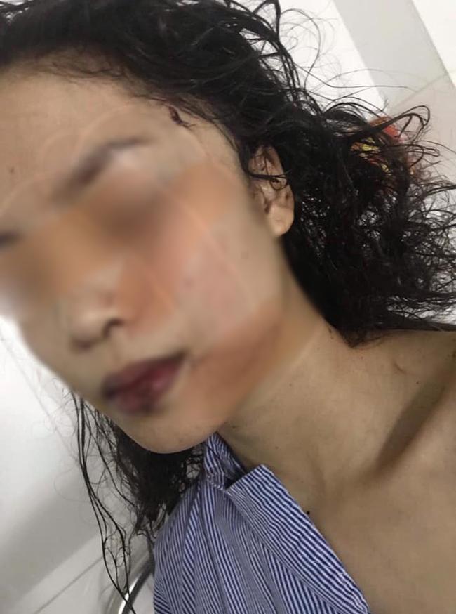 Bắc Ninh: Cô gái 18 tuổi bị bạn cũ lao vào phòng rạch mặt, cổ và tay, phải khâu 60 mũi - Ảnh 1.