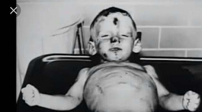 Cuộc sống như địa ngục trước khi lìa đời của cậu bé 3 tuổi, liên tục bị mẹ nuôi ruồng bỏ, hành hạ và xâm hại vùng kín - Ảnh 4.