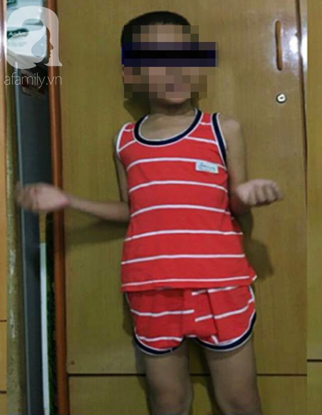 Đang chạy chơi rồi bị nôn ói hơn 10 lần, bé trai 9 tuổi phát hiện bị đột quỵ do tắc mạch máu não - Ảnh 1.