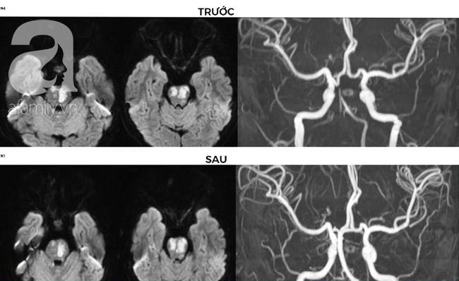 Đang chạy chơi rồi bị nôn ói hơn 10 lần, bé trai 9 tuổi phát hiện bị đột quỵ do tắc mạch máu não - Ảnh 2.