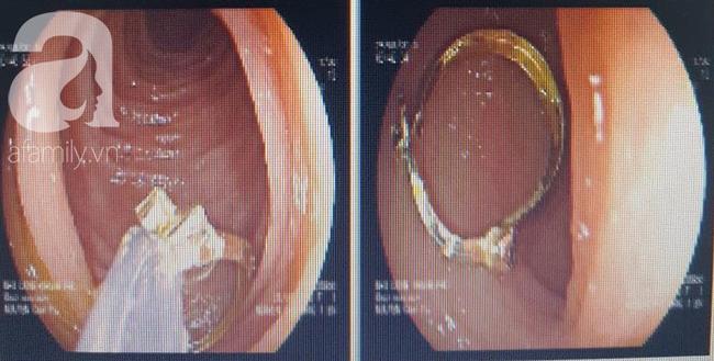 Giật khuyên tai từ bạn nuốt vào họng, bé gái 1 tuổi suýt chết vì tổn thương dạ dày - Ảnh 2.