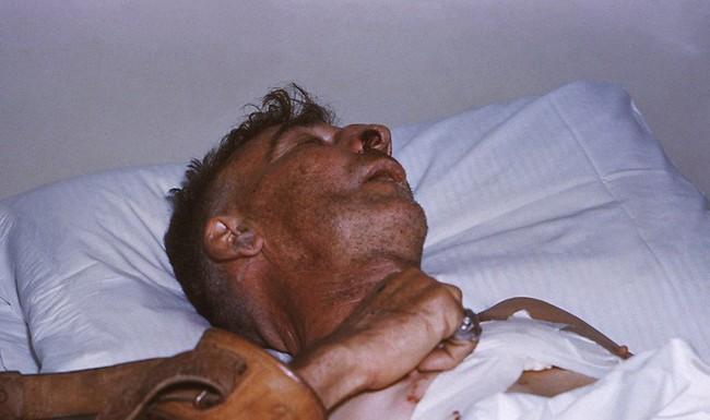 Tiêm phòng bệnh dại khi bị chó cắn: Quy trình tiêm và giá cả cần nắm rõ - Ảnh 5.