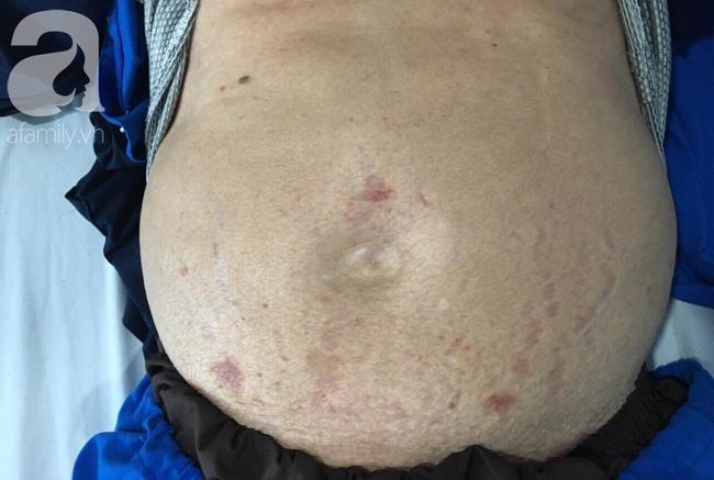 Tự chữa đau khớp bằng thuốc đông y lẫn tây y, một bệnh nhân chướng bụng to, xơ gan nguy kịch - Ảnh 1.