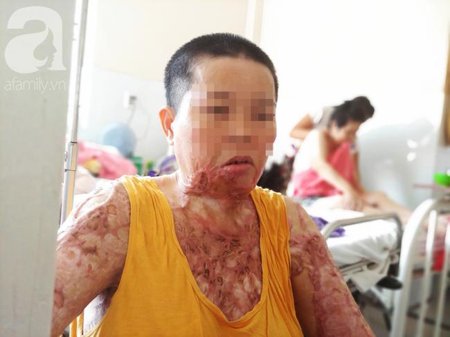 Người phụ nữ bị nhân tình cũ tạt axit bỏng nặng sau khi níu kéo tình cảm không thành - Ảnh 2.