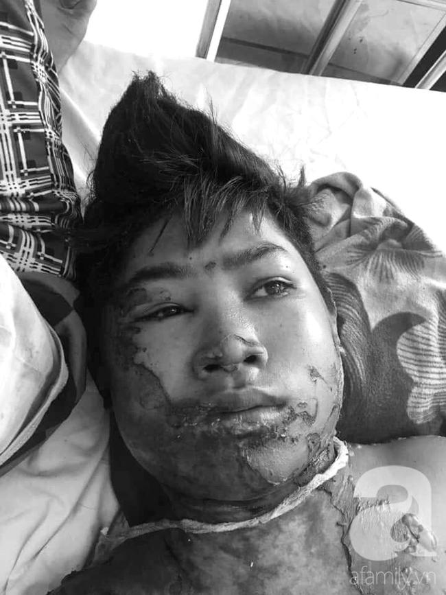 Thương tâm: Vợ chồng nghèo Gia Lai bất lực nhìn bé trai 14 tuổi nguy kịch vì bỏng xăng ngoài rẫy - Ảnh 1.