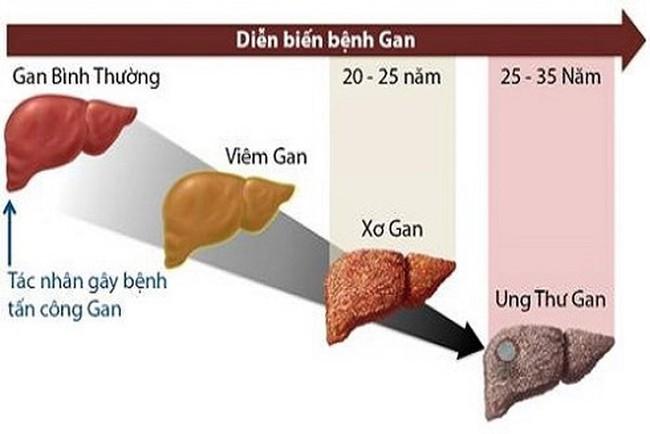 Sư tử Kim Loan - học trò của cố nghệ sĩ Trần Lập qua đời vì ung thư gan: Dấu hiệu nhận biết căn bệnh gây tử vong cao này - Ảnh 5.