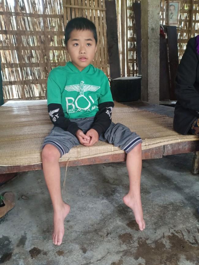 Xót cảnh không có mẹ, bé trai 11 tuổi liệt hai chân, nhiều lần bị bố tâm thần vứt bỏ trong rừng sâu - Ảnh 2.